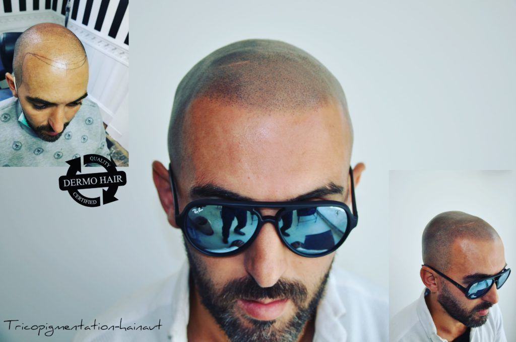Scalp micropigmentation shaved